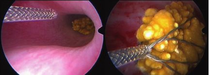 Minimally Invasive Stone Removal from the Lower Urinary Tract