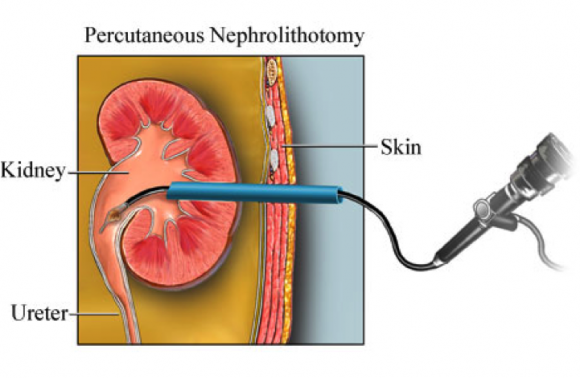 percutaneous-nephrolithotomy